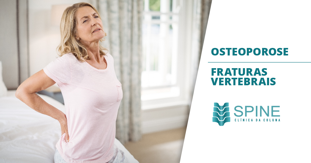 OSTEOPOROSE – FRATURAS VERTEBRAIS